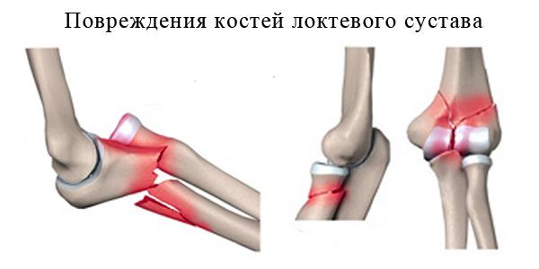 Повреждения костей локтевого сустава