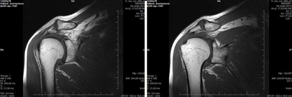 Снимок плечевого сустава