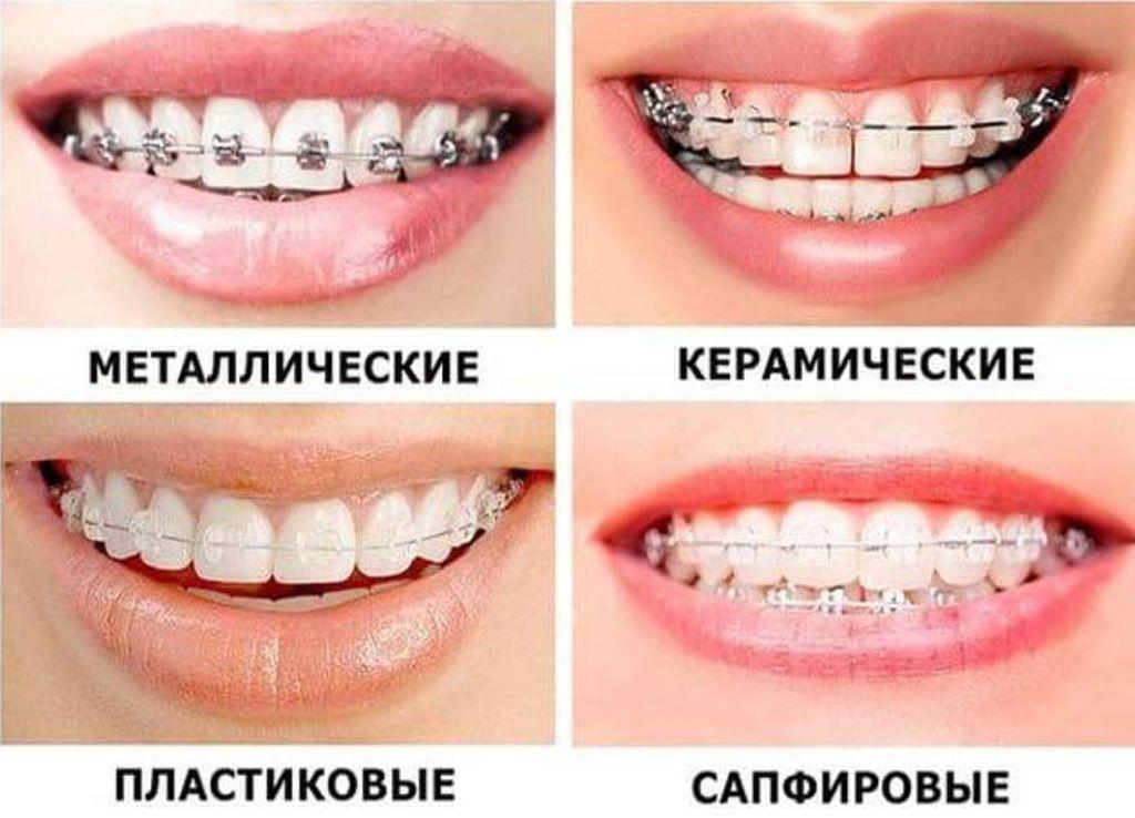Различные типы брекетов