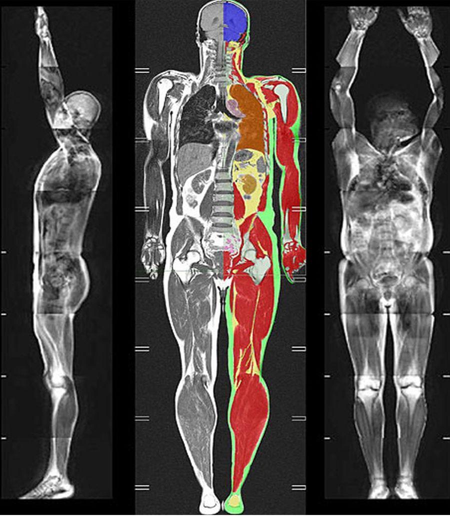Диффузионно-взвешенное изображение человека