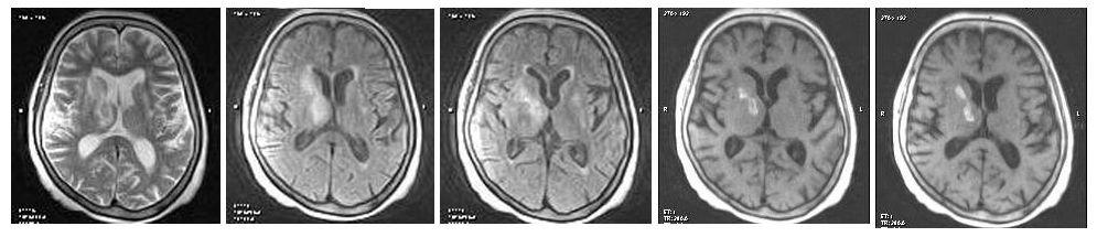 Гемморадический инсульт на МР-снимке