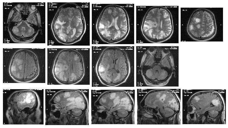 Серия снимков головного мозга