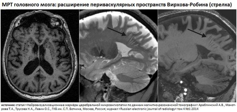Патология на снимке головного мозга