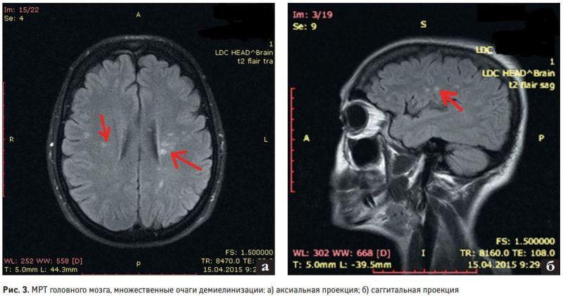 Признаки демиелинизации на снимке мозга