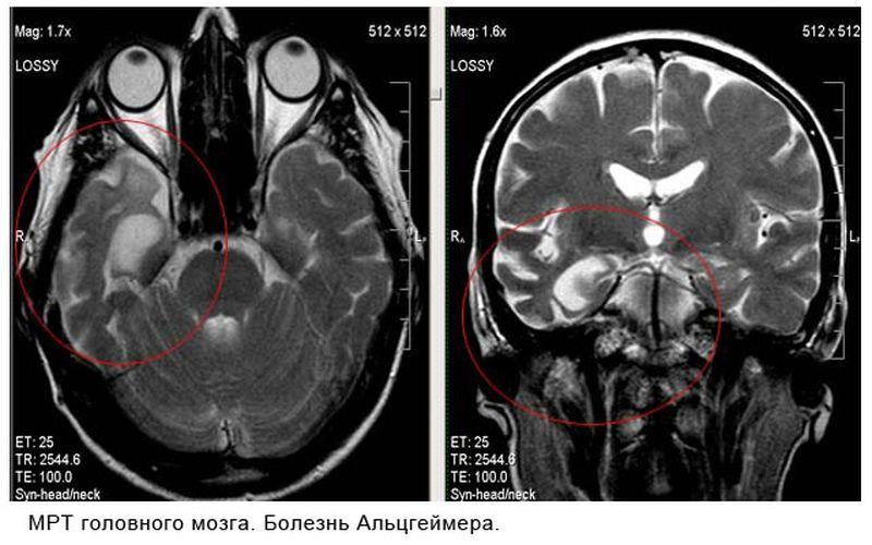 Болезнь Альцгеймера на снимке