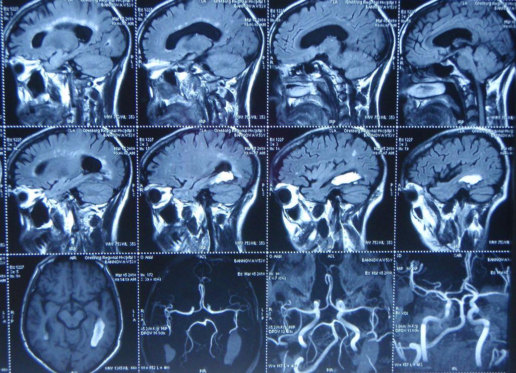 Снимок мозга и системы сосудов