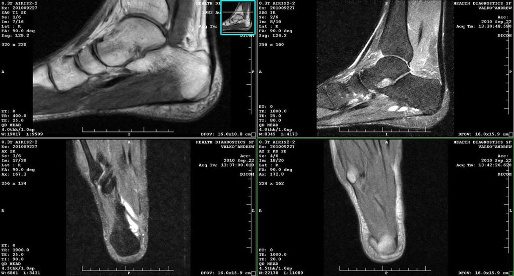 Снимки стопы и голеностопного сустава