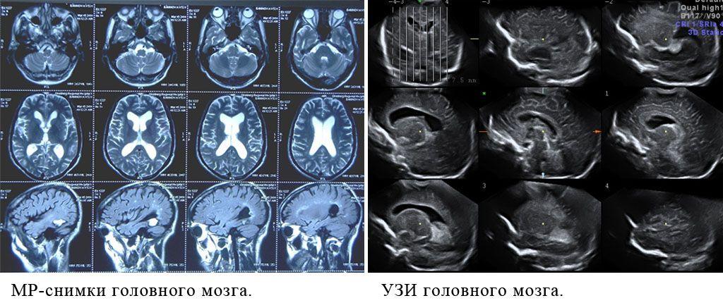 Снимки головного мозга