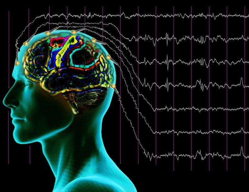 Соответствие линий на графике отделам мозга