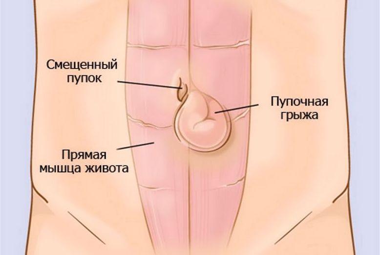 Схема расположения грыжи