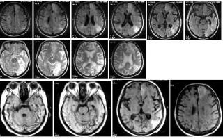 Описание МРТ-снимков, выявление повторного инсульта