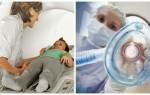Как и зачем применяют наркоз при проведении томографии
