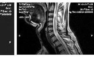 Изменения в спинном мозге при рассеянном склерозе на МРТ-снимках