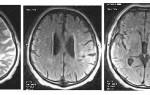 Дисциркуляторная энцефалопатия на МР-снимках