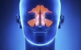 Магнитно-резонансная томография носа и околоносовых пазух