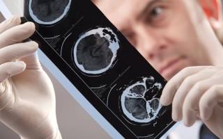 О применении магнитно-резонансной томографии при диагностике инсульта