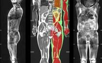 Обследование на клеточном уровне: диффузионно-взвешенная МРТ