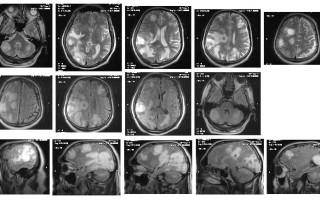 Расшифровка томограммы мозга, диагноз: метастазы из других органов