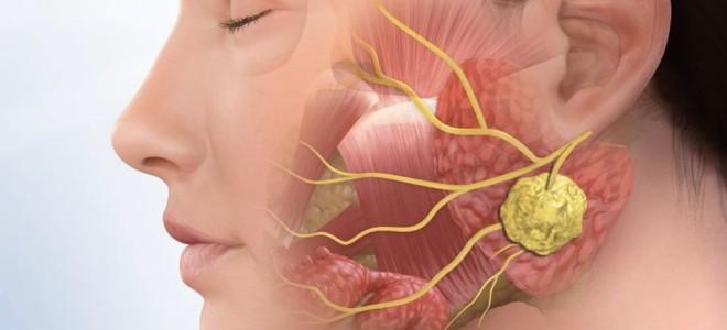 Как проходит УЗИ слюнных желез и что оно может показать