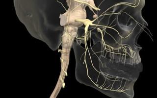 Обследование тройничного нерва методом магнитного резонанса
