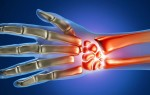 Как связаны МРТ кистей рук и длительная работа за компьютером