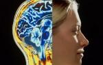 Для чего и как проводят томографическое обследование головного мозга с контрастированием