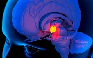 Зачем делают магнитно-резонансную томографию гипофиза