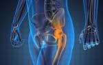 Зачем делают томографию тазобедренных суставов, что она показывает и как подготовиться к МРТ