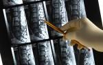 Томографическое исследование спинного мозга
