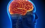 Магнитно-резонансное обследование головного мозга от подготовки до расшифровки