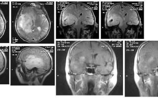 МРТ-протокол: новообразование в головном мозге
