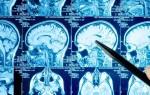 Сравнительный анализ компьютерной и магнитно-резонансной томографии головного мозга