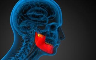 Все про обследование челюсти на МР-томографе и расшифровку результатов