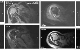 Описание МР-снимка плечевого сустава с комментариями