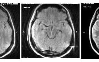 Синдром Корсакова – Вернике на МР-снимках с описанием