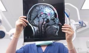 Причины появления пятен на МРТ головного мозга