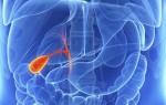 Все о магнитно-резонансной томографии желчного пузыря и возможных диагнозах