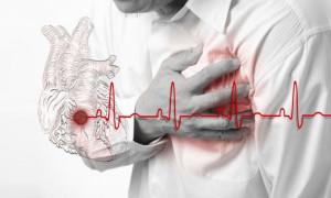 Насколько точно УЗИ может показать инфаркт миокарда