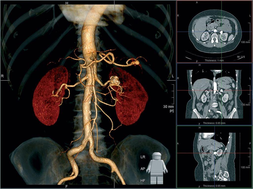 Визуальное представление результатов томографии