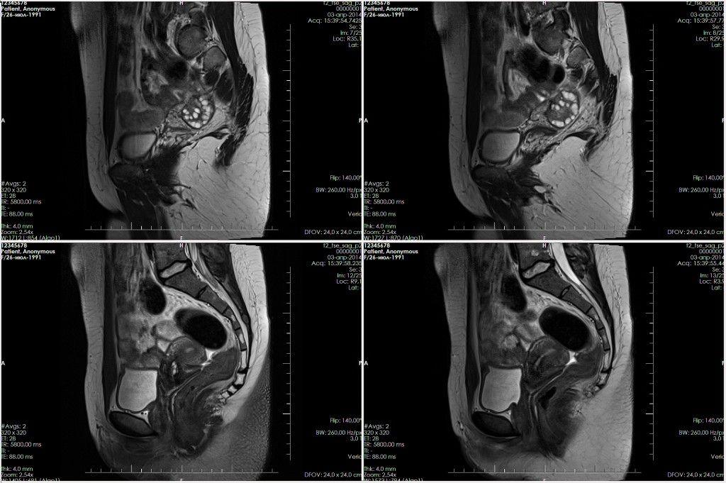 Результат обследования органов малого таза