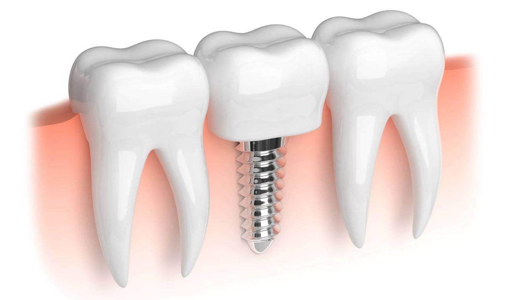 Стоматологические имплантаты
