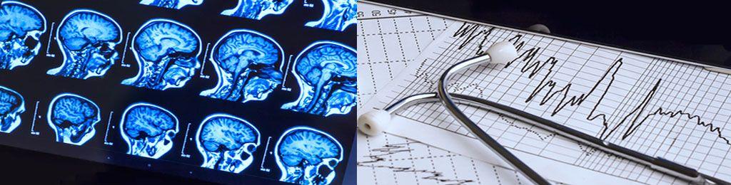Результаты обследования мозга разными способами