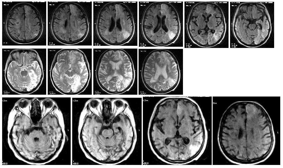 Снимок головного мозга после перенесенного инсульта