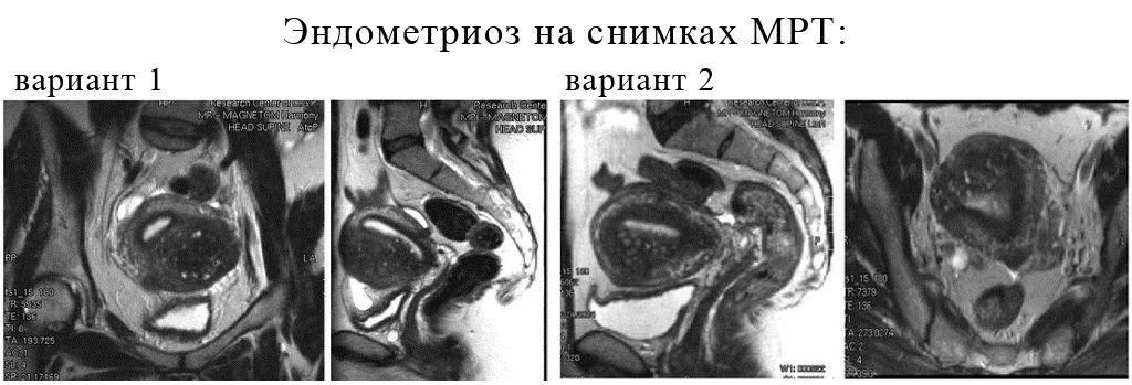 Снимки органов малого таза