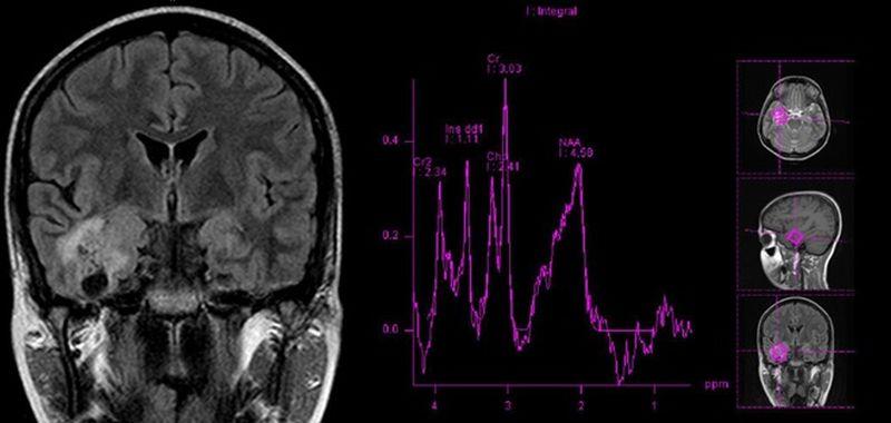 Снимок головного мозга и график его электрической активности
