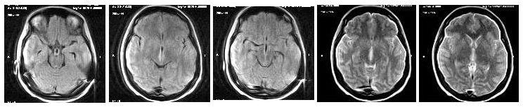 Синдром Корсакова-Вернике на МРТ
