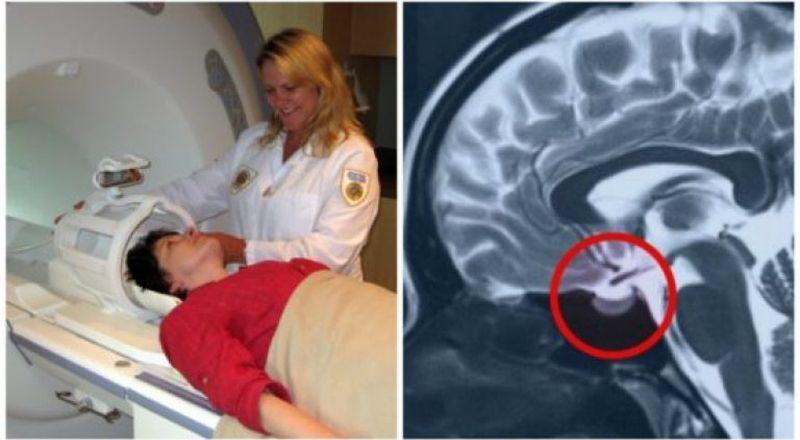 Процесс и результат обследования головного мозга