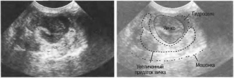 Водянка оболочек половой железы